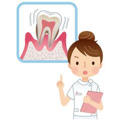 注意する看護士 歯周病