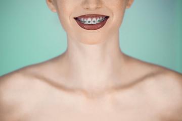 Happy beautiful girl with braces