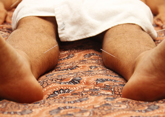 man in an acupuncture therapy