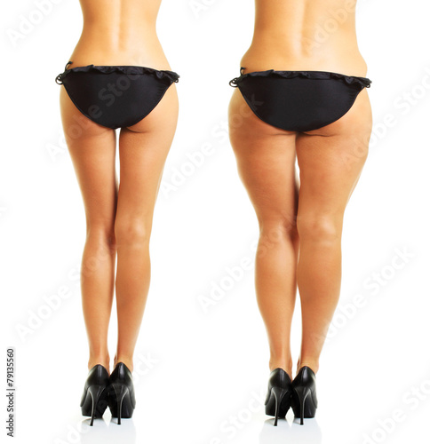 Perfect and fat woman's body isolated - 79135560