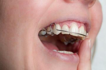 Zahnspange wird eingesetzt
