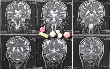 снимок инсульт  кровоизлияние в мозг