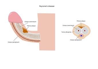 peyronie's disease, induratio penis plastica
