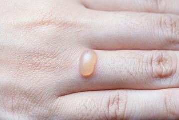 Blister on Human Finger