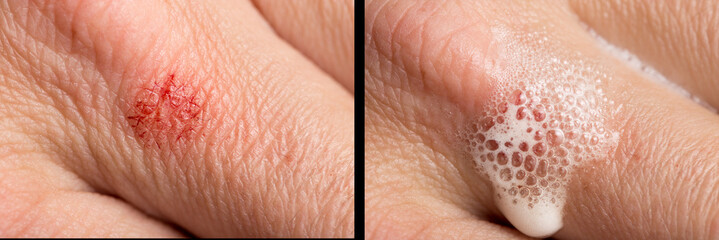 wound on the human skin. macro