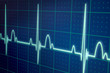 ECG / EKG monitor - 79602795