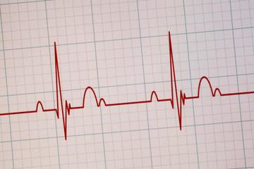 ECG / EKG monitor