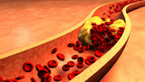 Clogged Artery with platelets and cholesterol plaque - 79614751