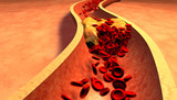 Clogged Artery with platelets and cholesterol plaque poster