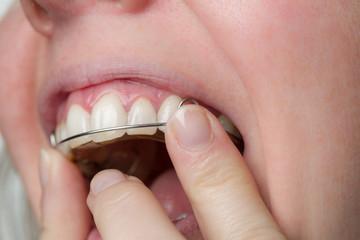 Einsetzen einer Zahnspange