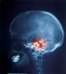 X ray MRI - Image of Spinal Column Neck pain and Skull Head Stre