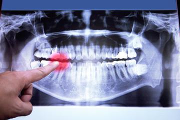 Set of metal dental Dentist's medical equipment tools