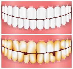 Teeth, Mouth, Dentistry