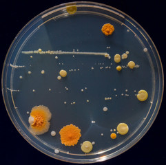 Petri dishes with colonies of pathogenic organisms