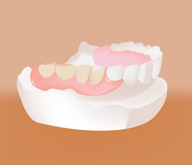 calco dentale ponte