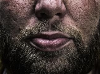 Male beard