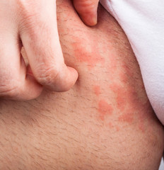 Eczema groin