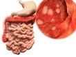 Vorkommen der colitis ulcerosa im Gastrointestinaltrakt - 79962791