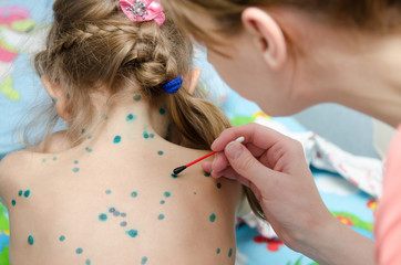 Mom misses girl zelenkoj rash of chickenpox