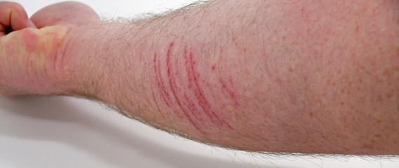 verletzter männlicher unterarm