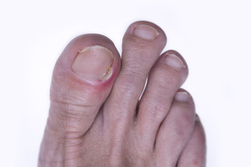 Inflammation of the nail of the big toe