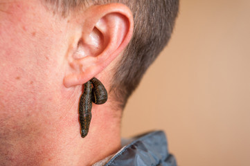 Leech therapy for a man