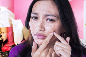 Teenage girl touching acne on her cheek