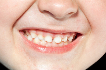child teeth close up