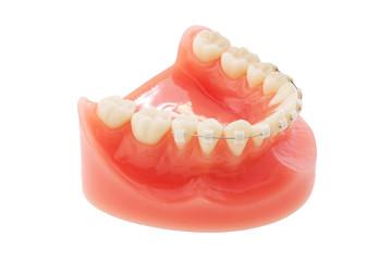 入れ歯  Dentures