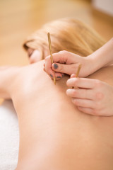 Therapist applying acupuncture needle