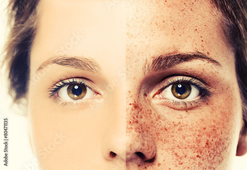 eyes woman freckles half-face  - 80471135