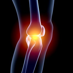 Human Knee. 3D. Knee in pain x-ray
