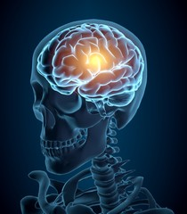 Brain. 3D. Headache illustration