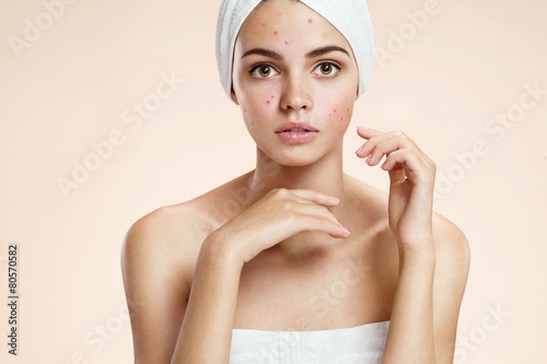 Scowling girl in shock of her acne with a towel on her head. - 80570582
