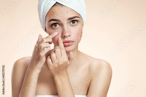 Acne spot pimple spot skincare beauty care girl - 80570762