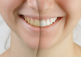 Fototapety teen girl smile before and after teeth whitening