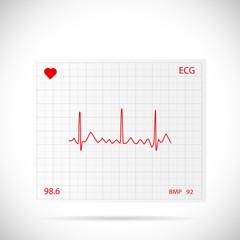 Heart Cardiogram