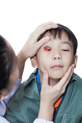 Pinkeye (conjunctivitis) infection on a boy, doctor check up eye