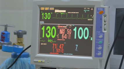 ECG monitor in reanimation