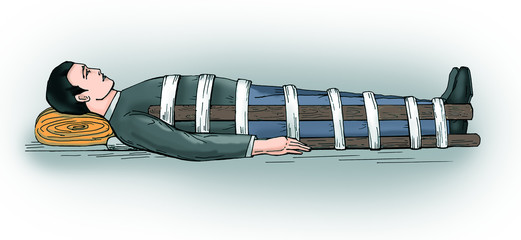 Immobilization of a fractured femur, tibia.