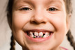 Girl with dental braces - 80763125
