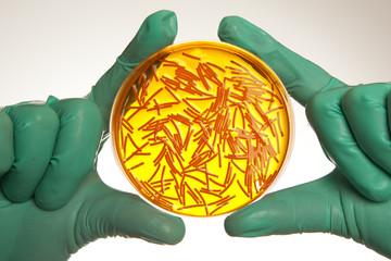 Petri dish with virus cells