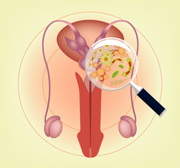 Male ill reproductive system with magnifier. Vector illustration