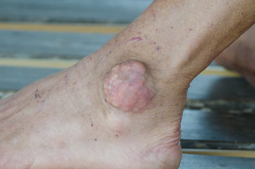 foot of patient with gout