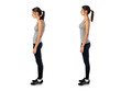 Leinwanddruck Bild - Woman with impaired posture position defect scoliosis and ideal