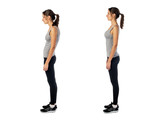 Fototapety Woman with impaired posture position defect scoliosis and ideal