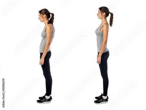 Leinwandbild Motiv Woman with impaired posture position defect scoliosis and ideal