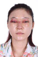 woman with nose and eye swelll after nose job