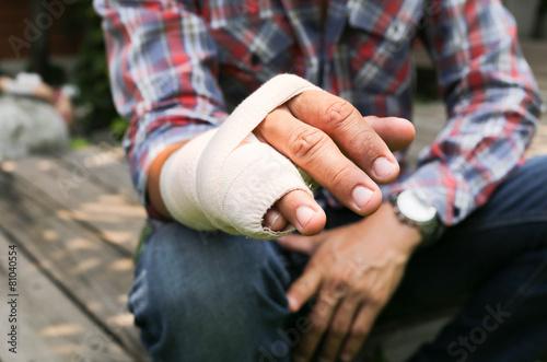 Leinwandbild Motiv Splint broken bone  hand Injured