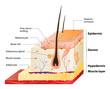 skin layers - 81053941
